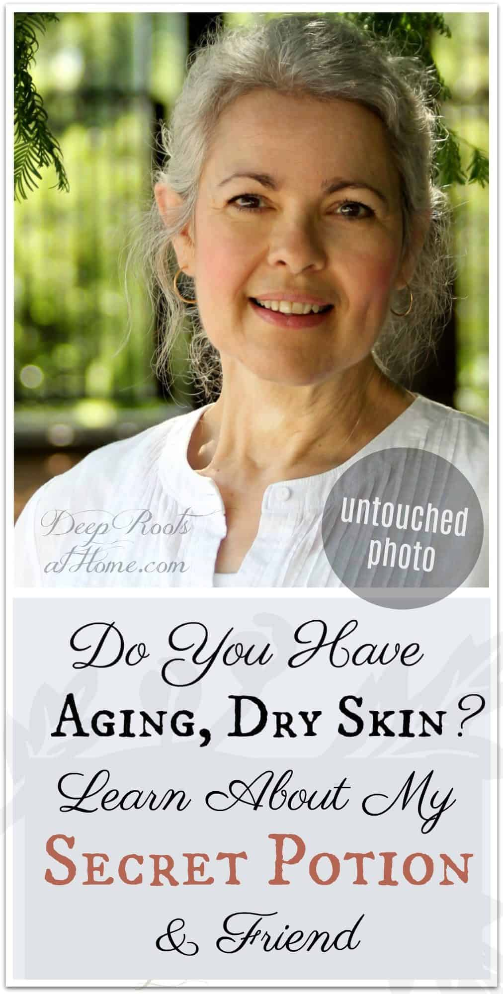 Do You Have Aging, Dry Skin? Introducing My Secret Potion & Friend. aging