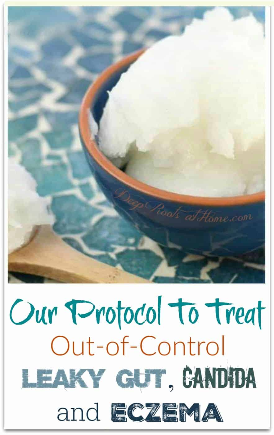 Our Protocol To Treat Out-of-Control Leaky Gut, Candida & Eczema. coconut oil in a bowl