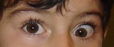 An Italian study showing this boy's strabismus caused by vaccine.