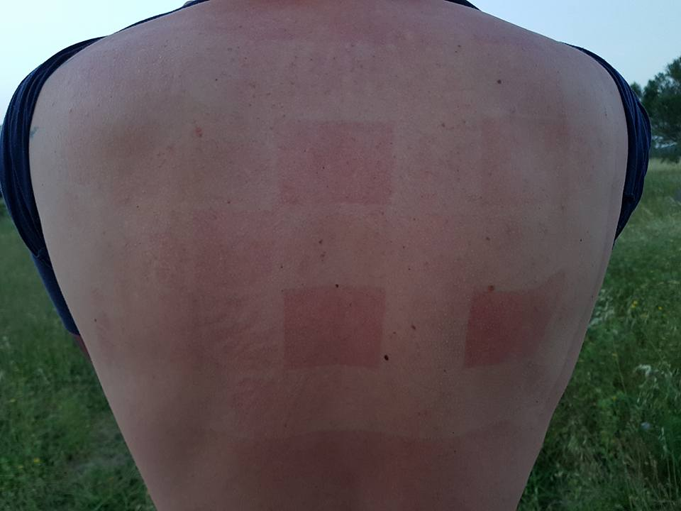 Results of sunscreen test on man's back.