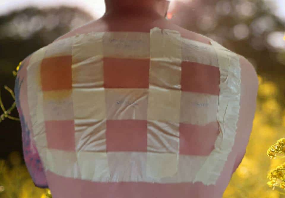 Plant-Based Sun Protection: Skin Tests Done In Spain. Masking tape on man's back making a grid to test sunscreen