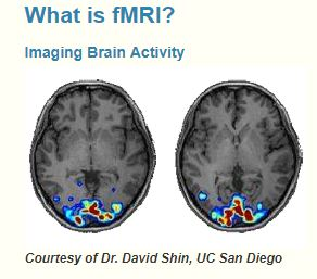 Storytime Science: What Happens In Your Child's Brain When You Read? Brain scan of the head with an MRI