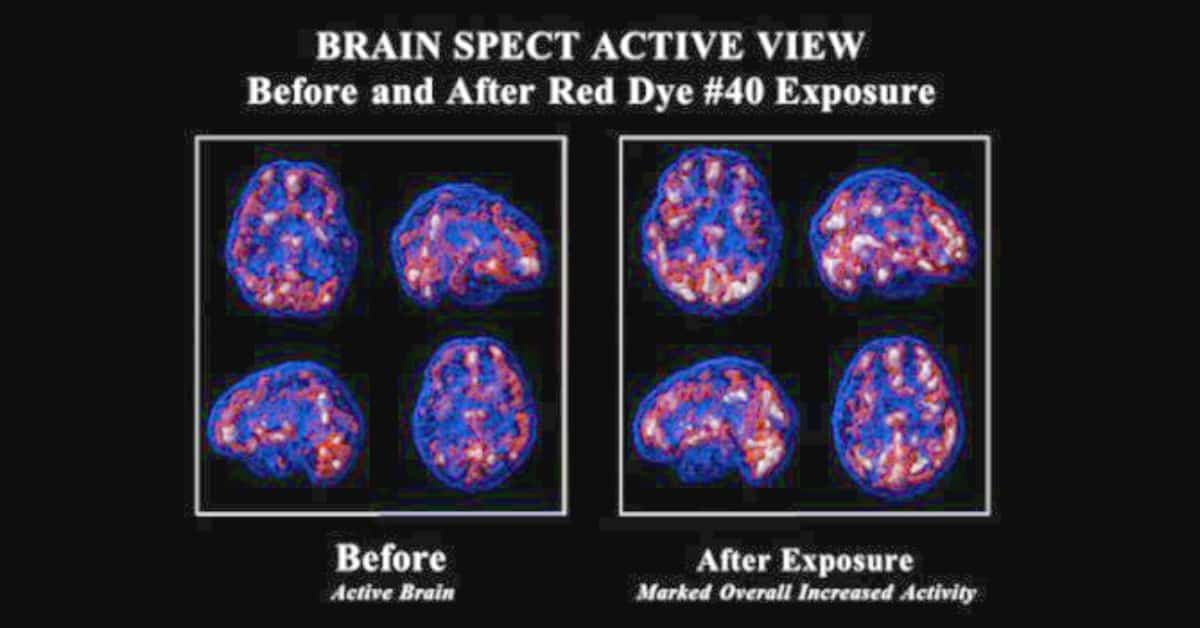 Red Dye #40 Can Make Non-ADD Kids Hyperactive & Alter Brain Function. SPECT brain images before and after red dye consumption.