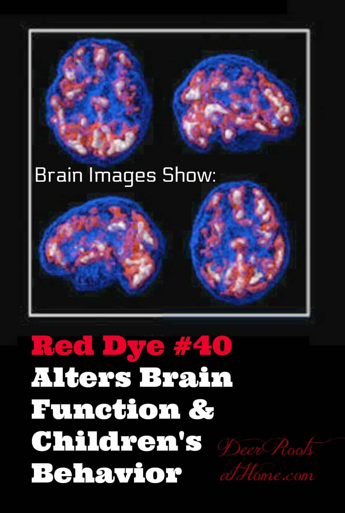 Red Dye #40 Can Make Non-ADD Kids Hyperactive & Alter Brain Function. Brain images showing effects of food dyes on brain function.
