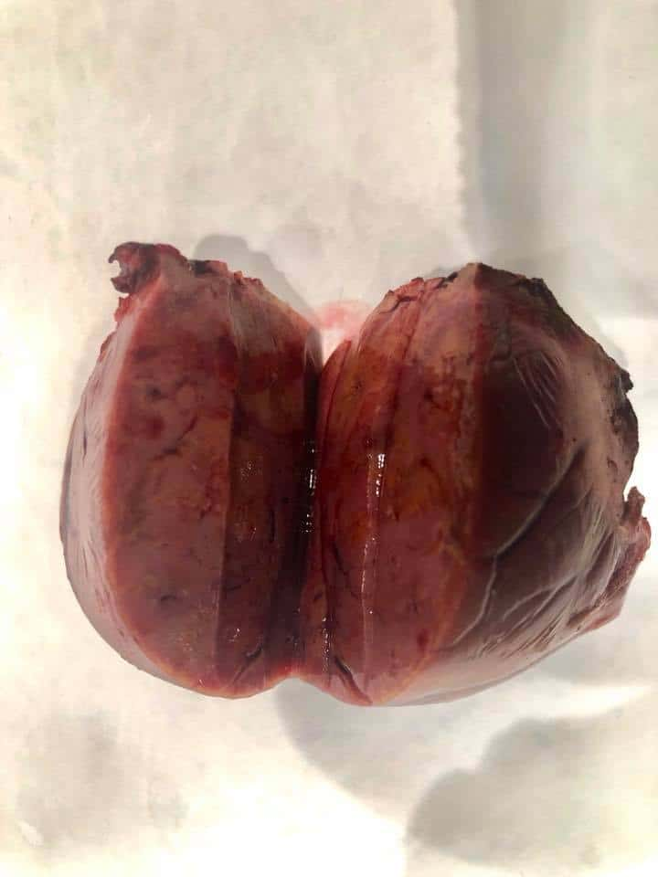 Birth Control Pills: What One Young Woman Wishes She Had Known. A surgically removed portion of a girl's liver.