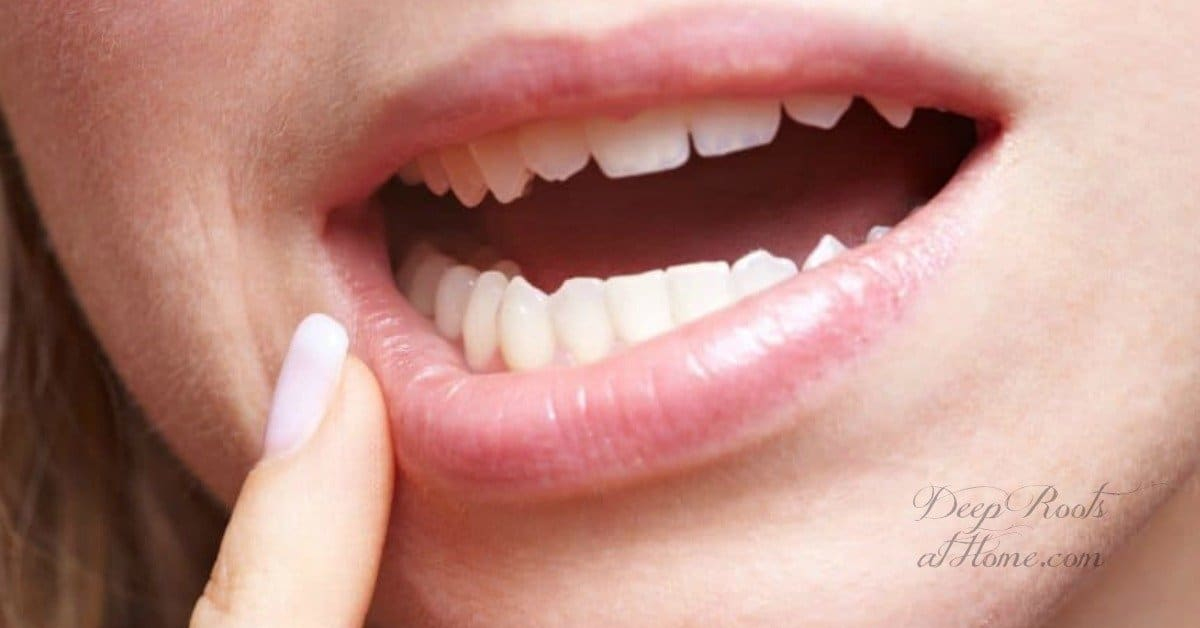 Real Life Oil Pulling: Avoid Crowns, Stop Infection & Reverse Cavities. a woman's open mouth and teeth