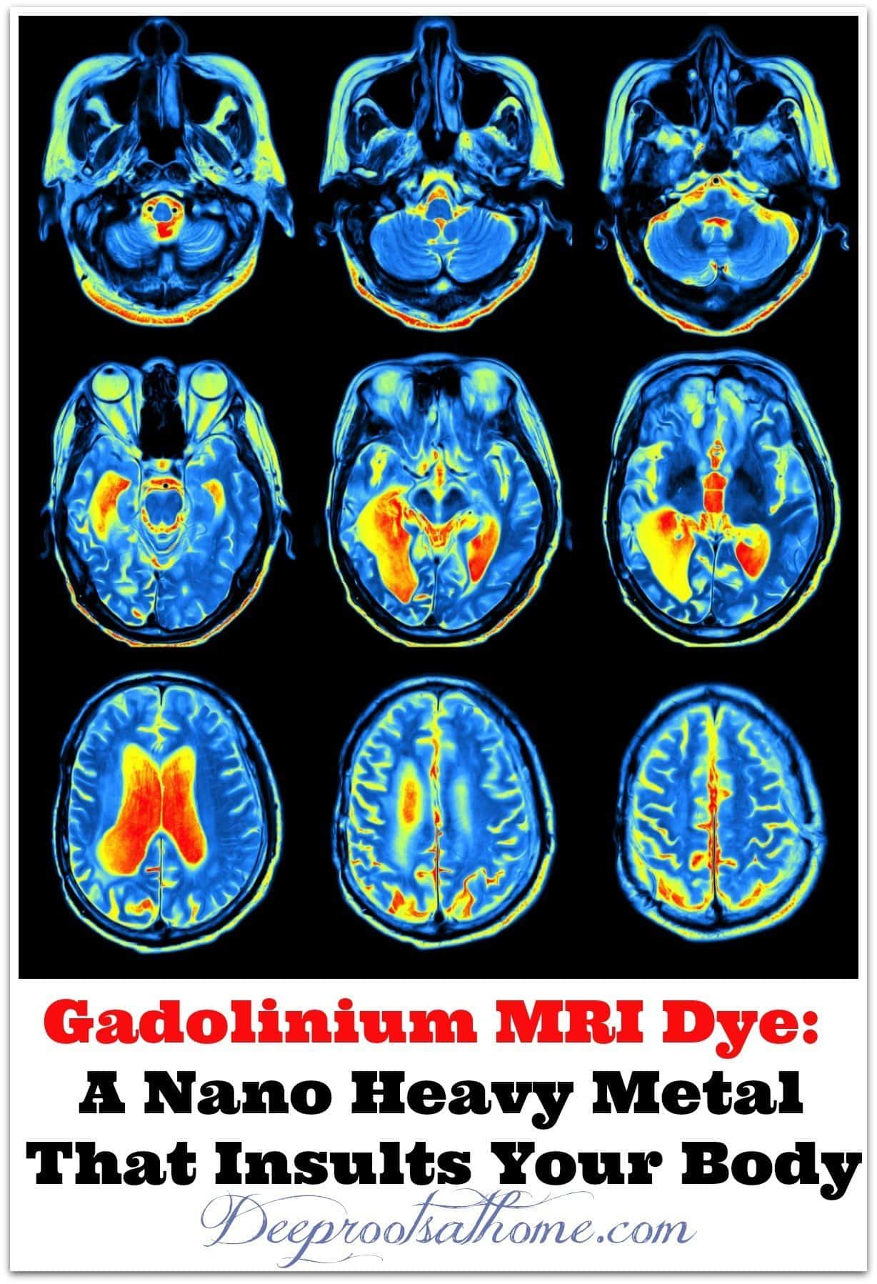 Gadolinium MRI Dye: A Nano Heavy Metal That Insults Your Body, contrast dye in a brain