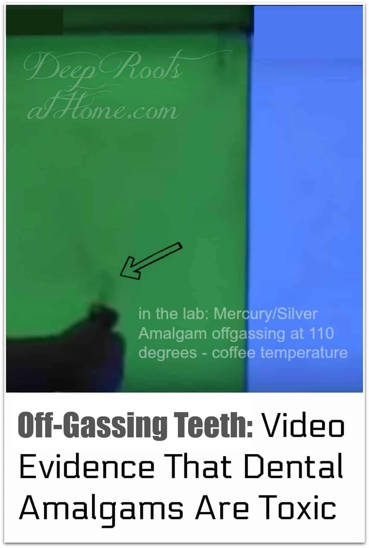 Off-Gassing Teeth: Video Evidence That Dental Amalgams Are Toxic. a smoking tooth