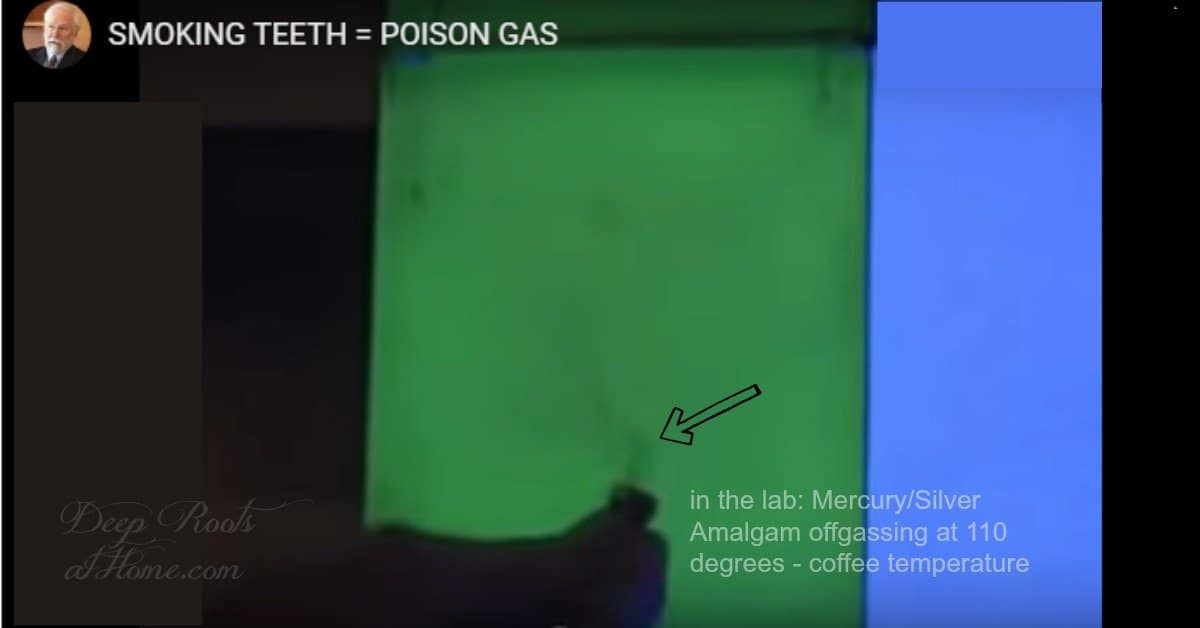 Off-Gassing Teeth: Video Evidence That Dental Amalgams Are Toxic. smoking tooth